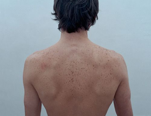 Noah's back...? His freckles could be described as the constellations. ;)