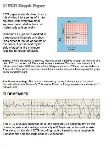 97 best ECG teaching resources images on Pinterest Nursing - graph paper with axis