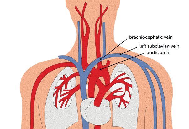 Innominate artery anatomy