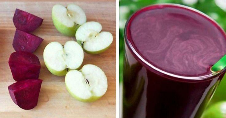 Nie je to iba zeleninový smoothie. Je to liečivé sérum na pečeň. Je určený pre ľudí, ktorí už nechcú užívať antibiotiká predpísané doktorom, pretože im neprospievajú (spôsobujú ťažkosti na boku, tr…