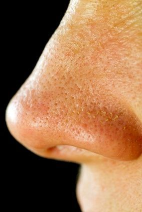 Solutions For Large Pores...What Causes Pores to Enlarge?