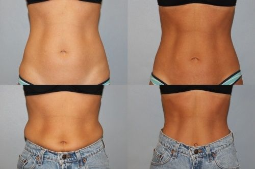 Actual Patient Photos. 6 months after CoolSculpting to abdomen (2 treatments) and love handles.