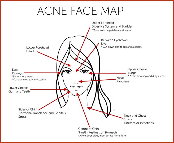 Homemade Acne Remedies - The Hidden Benefits of Home Acne Remedies to Remove Acne Scarring >>> You can find out more details at the link of the image. #pelesaudavel