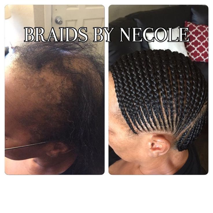 Crochet Hair Loss : suffering job crochet braids hair weave hair journey hair styles ...