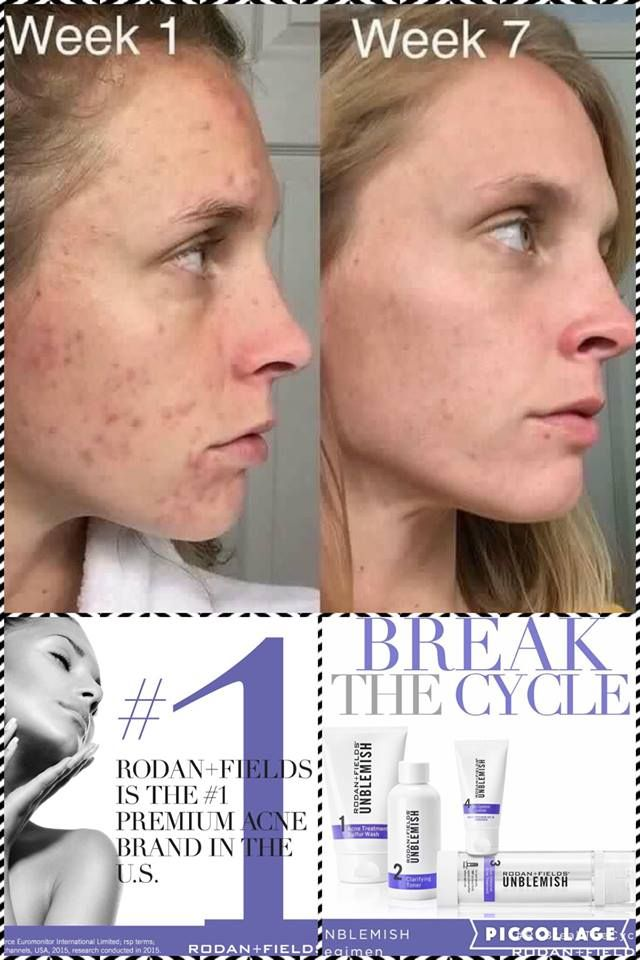 Rodan + Fields Unblemish Regimen is for acne and post acne marks.  Take control of your skin.  60 day money back guarantee.  Message me on pinterest @ R+Fskincare101 for more info.