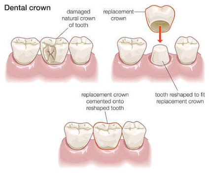 "A dental crown is a tooth-shaped ""cap"" that is placed over a tooth to cover the tooth to restore it to its natural shape, size, strength, and to improve upon its appearance. The crown is cemented onto the reaming tooth and is the visible portion of the tooth that lies at and above the gum line.  #Dentist #Dentistry #Dental #Endodontist #Endodontics #Periodontist #Periodontics #Prosthodontist #Prosthodontics #HowardFarran Google+"