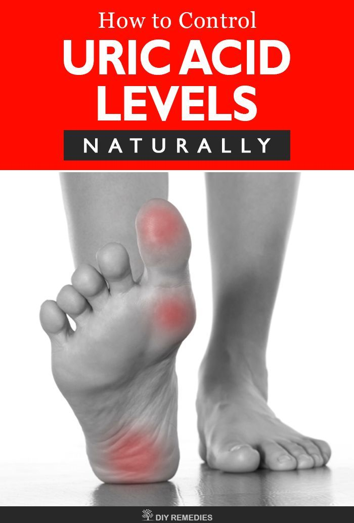 sodium bicarbonate to lower uric acid gout pain foot how to reduce uric acid without medication