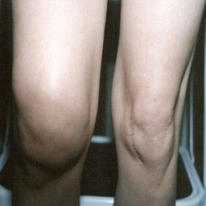 Herbal Remedies For Knee Swelling