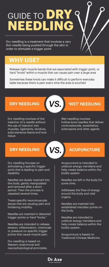 Guide to dry needling - Dr. Axe