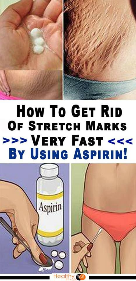 How to get rid of stretch marks on body
