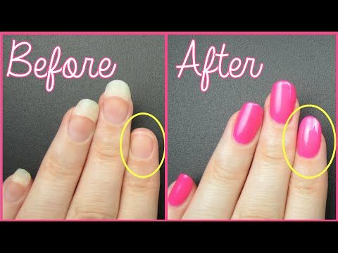Fast And Easy Way To Fix Broken Nails