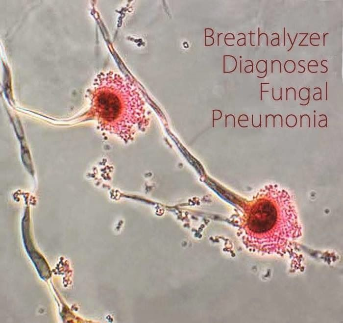 All About Microbiology: Breath test' shows promise for diagnosing fungal p...