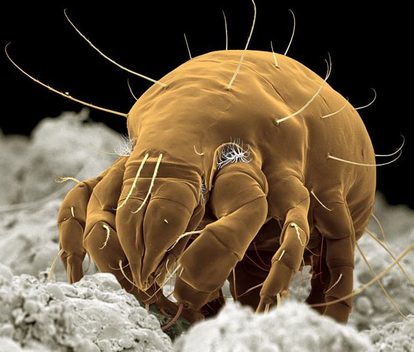 Mite  STEVE GSCHMEISSNER / SCIENCE PHOTO LIBRARY/ BARCROFT MEDIA