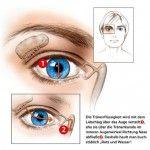 Die Tränendrüse  Viele bemerken sie nur, wenn sie nicht richtig funktioniert. Dabei ist die Tränendrüse, die oberhalb des äußeren Augenwinkels in der Augenhöhle sitzt, unerlässlich für die Gesundheit. BITTE WEITERLESEN