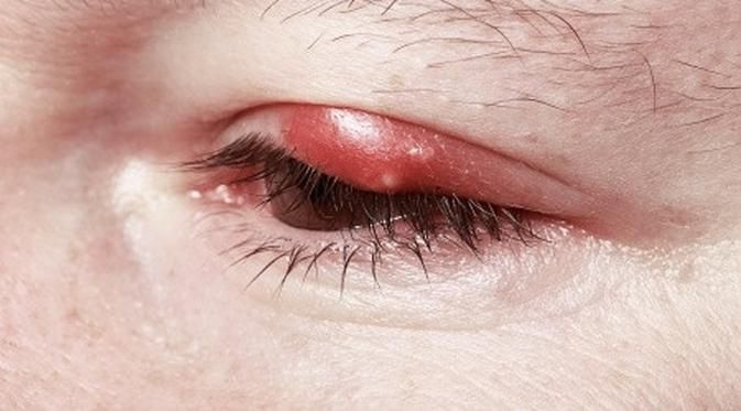 4 Tanda Gangguan Kesehatan yang Muncul pada Mata - http://wp.me/p70qx9-8FX