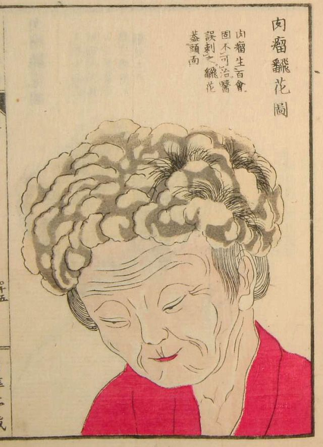 Edo-period medical illustration -- Yōka Hiroku (Confidential Notes on the Treatment of Skin Growths), 1847