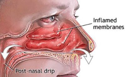 17 Home Remedies For Blocked or Stuffy Nose