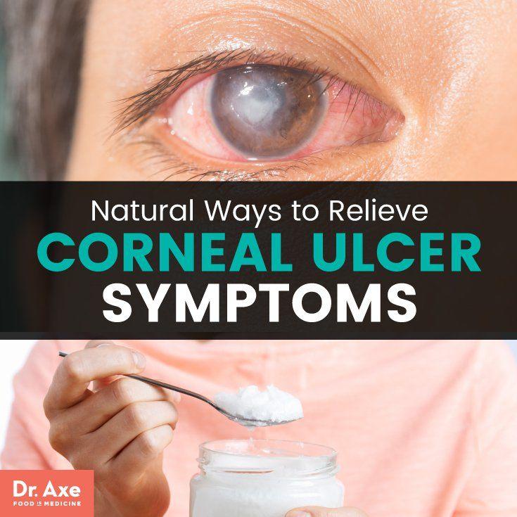 Corneal Ulcer Symptoms Relieve Symptoms 11 Natural Ways Dr Axe Corneal Ulcer Ulcer Symptoms Ulcers