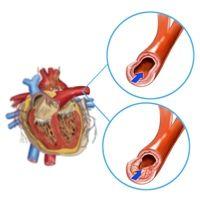 Hartinfarct. Een hartinfarct is niet iets waar je voor behandeld kan worden, maar de beste manier van handelen is om dingen zoals je bloeddruk, eetgedrag en stress in de gaten te houden, omdat dit kan leiden tot aderverkalking, wat leidt tot een hartinfarct. (Tom)