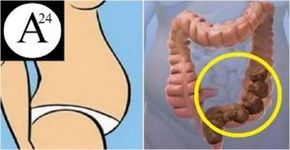 Prendi peso ma non sei grasso?Potresti avere l' intestino pieno di feci. Ecco come liberarlo in modo naturale.