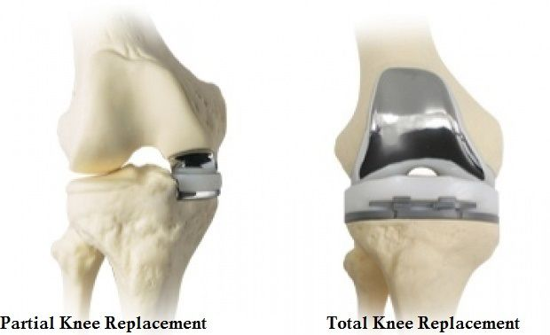 Cheap Price Total Knee Replacement Surgery Hospital in India : Know Everything