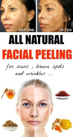 Natural Way To Lighten Dark Facial Hair