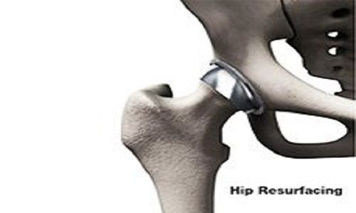Healing hip issues with best Hip Resurfacing Surgery cost in India Where Patient's Pocket Matters
