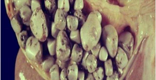 De acuerdo al Dr. Lai, uno de los primeros síntomas de las piedras es la sensación de hinchazón luego de ingerir los alimentos pesados, es como si la persona sintiera que se le hace difícil digerir los alimentos, depende de que tan seria sea el asunto para que posteriormente aparezca los dolores en el hígado. Anuncios Con la siguiente receta que te …