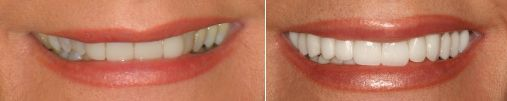 Dr. Ginger Price Cosmetic & General Dentist: Porcelain Crowns and Veneers Before and After Ph (602) 468-1135 www.gingerpricedds.com