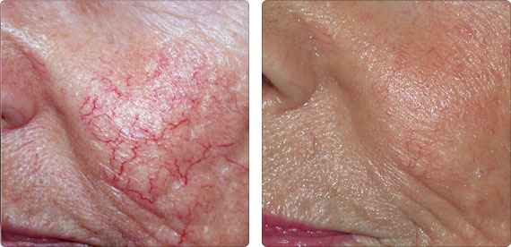 Facial laser treatments using the harmony to diminish telangiectasias (small dilated blood vessels.)