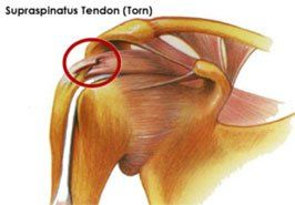 supraspinatus tendon tear