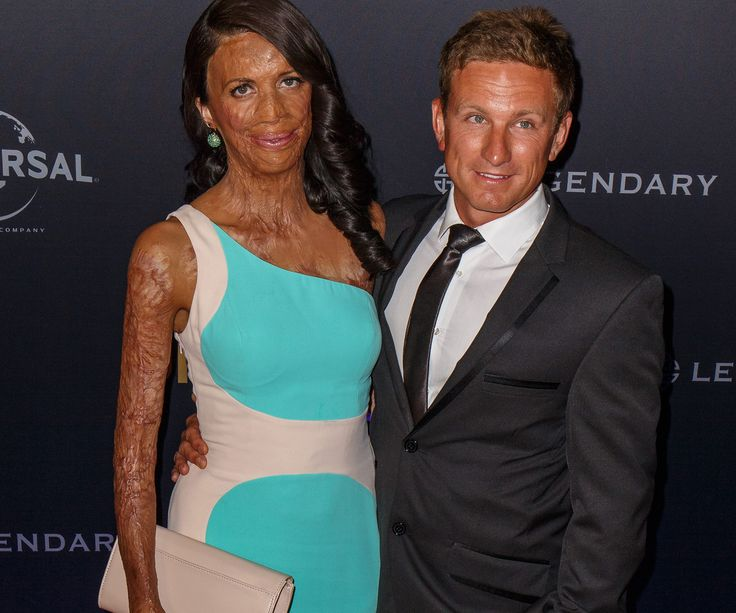 We take a look at Turia Pitt and Michael Hoskin's inspiring love story in pictures.
