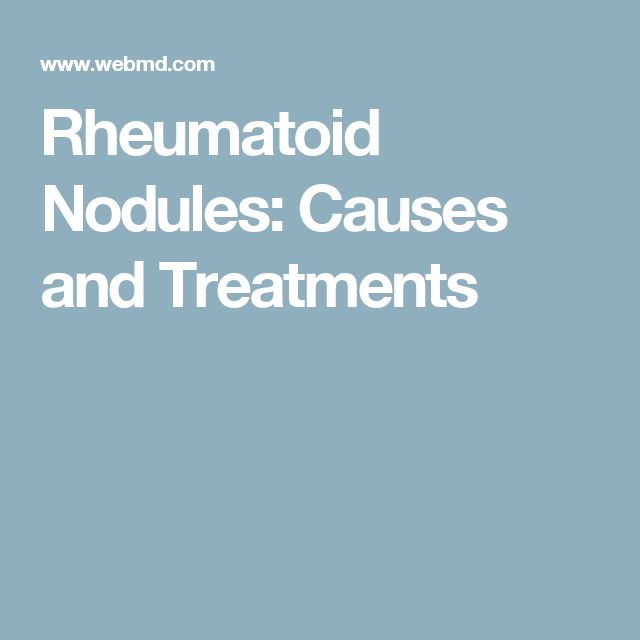 Rheumatoid Nodules: Causes and Treatments