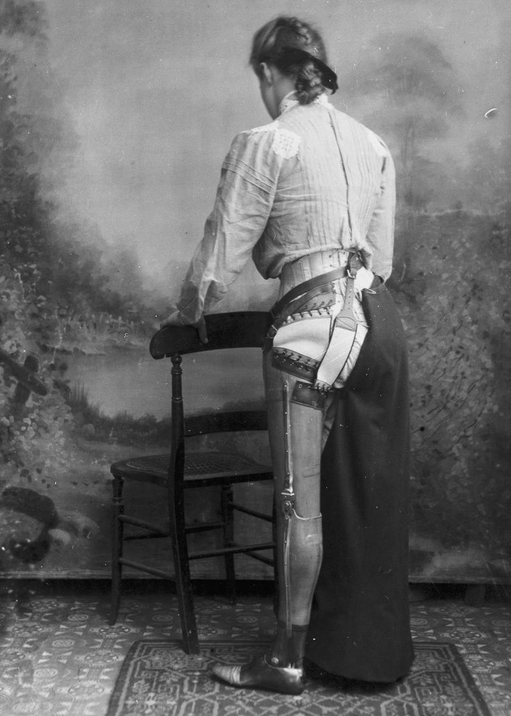 Artificial limbs from 1900 were decades ahead of their time//Using a secret process wherein he molded the leather to the client's limb before hardening it, Gillingham started a business making prostheses. By 1910, he had restored mobility and function to over 15,000 patients. He photographed many of his patients, and published the photos in medical journals to advise surgeons on the best amputation methods. Gillingham died in 1924, but his family continued his business until 1960