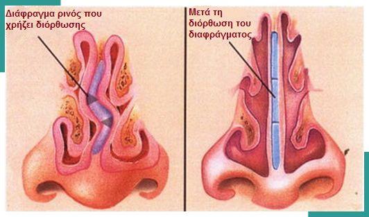 Πολύ συχνά η διαφραγματοπλαστική γίνεται ταυτόχρονα με ρινοπλαστική. Σε αυτήν την περίπτωση δεν χρειάζονται συνήθως επιπλέον τομές κι οι δύο επεμβάσεις γίνονται ταυτόχρονα από τις ίδιες τομές που διενεργούνται μέσα στην μύτη.  Μπορεί να χρησιμοποιηθεί γενική ή τοπική αναισθησία, αν και τα περισσότερα άτομα αισθάνονται πιο άνετα με τη χρήση της γενικής αναισθησίας, για να μην ακούν και αισθάνονται οτιδήποτε.