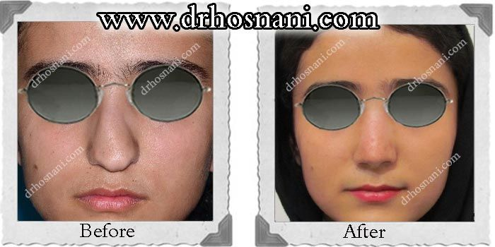 Open rhinoplasty was performed to reduce the excess width of the nose at the cartilaginous part and correct the C-Shaped deformity of the nose. What is your opinion about the way this C Shaped deformity is fixed? visit the website.