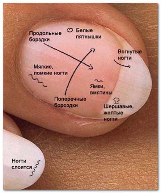 Белый цвет ногтей говорит об анемии или о проблемах с почками.  Вмятины и коричневые пятна или трещины на ногтях казывают на псориаз.  Различие в длине ногтей или другие аномалии в их развитии свидетельствуют о неполноценном питании или о расстройстве пищеварения.  Белые поперечные линии указывают на болезни печени  Наполовину белый ноготь с чёрными пятнами в верхней части указывает на расстройства почек.  Ненормально толстые ногти могут возникнуть в результате проблем сердечно-сосудистой