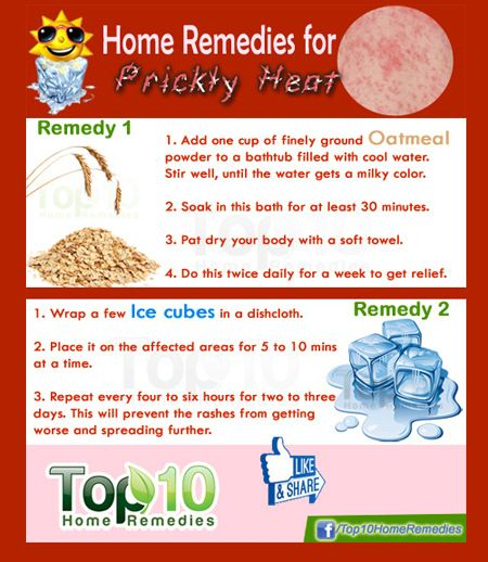 10 home remedies for heat rash/prickly heat