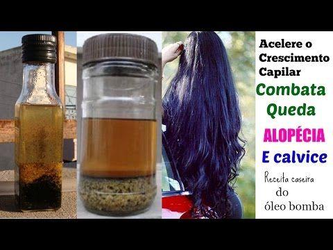 Receita do óleo bomba para acelerar o crescimento do cabelo e combater queda, calvície e alopécia - YouTube