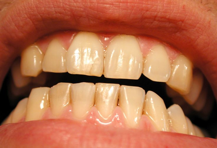 Stained / Discolored Teeth