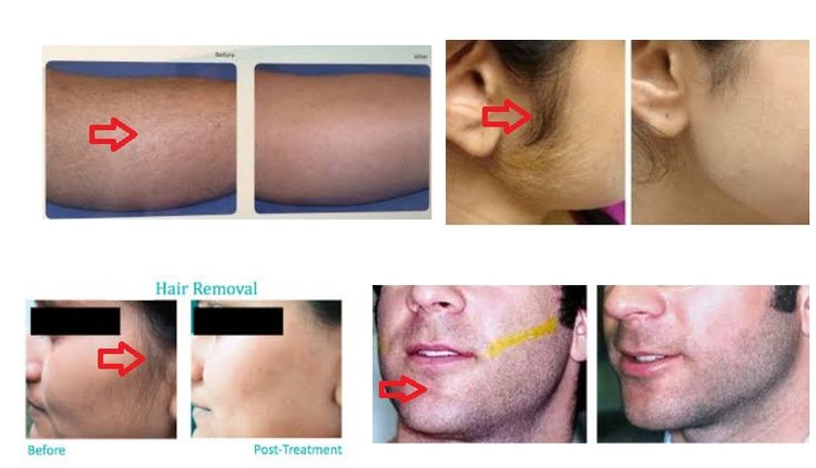 website:http://www.siobay.com, an natural permanent hair removal cream for men and women which results in 14 days.