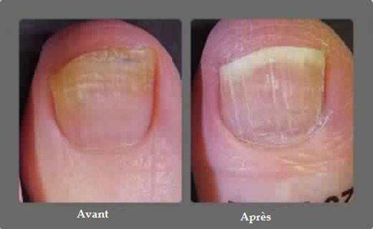 La mycose des ongles, plus simplement appelée «champignons», peut infecter aussi bien les ongles des orteils que de la main. Elle touche environ une personne sur 10 et est contagieuse. L'ongle devient alors jaunâtre et peut arborer une tache blanche. Il se détériore petit à petit et se décolle. Voici des remèdes naturels pour aider …