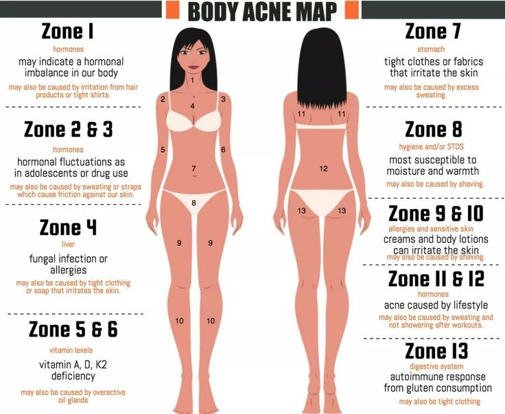 Acne Treatments, Pimple Treatment, Remove Acne, Get Rid Of Acne, Pimples,  Acne Cure, Body Care, Battle, Health And Beauty