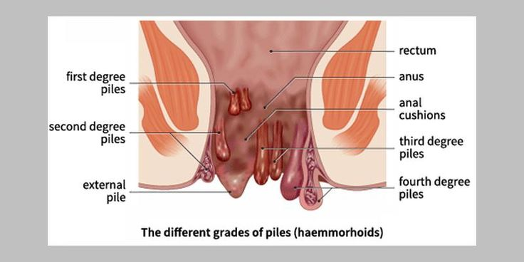 """Dr. Ramkrishna Valaki presents a case of hemorrhoids in a man of 30. Sensation is used to confirm the remedy. """