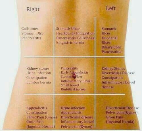 Abdominal Pain Location Diagram Stomach Pain Location Diagram