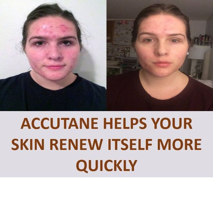 Article Body: What is Accutane? Accutane is a form of vitamin A. It reduces the amount of oil released by oil glands in your skin, and helps your skin renew itself more quickly. Accutane is used to treat severe nodular acne. It is usually given after other acne medicines or antibiotics have...