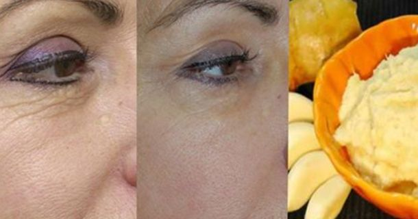 Buying Cosmetic products and going to the spas can cost a lot just to try and keep up a certain appearance. Wrinkles are one thing that people try their best to remove so they can have more...