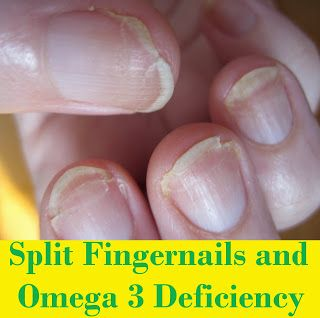 DOES YOUR FINGERNAILS LOOK LIKE THIS? Do Split Fingernails indicate Omega 3 Deficiency?  YES THEY DO. Lack of essential fatty acids or EFAs in our diet.These include dry and itchy skin, joint problems, brittle hair and nails, acne and more.This is a huge number considering the endless health benefits of essential fatty acids. Our skin is a reflection of our diet and this stands . http://www.facebook.com/groups/naturesbeautynhealth/