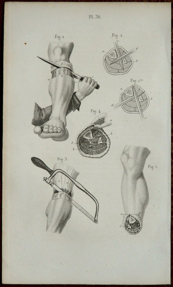 1857. Pl. 30. Chirurgie : AMPUTATION d'une jambe. Anatomie humaine. Instruments chirurgicaux.