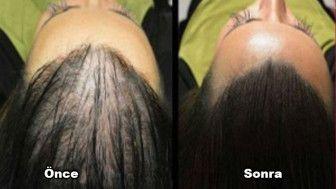 En Hızlı Saç Çıkarma Doğal Reçete! Tüm Dünya Bu Maskenin Sonucuna Hayran Kaldı!